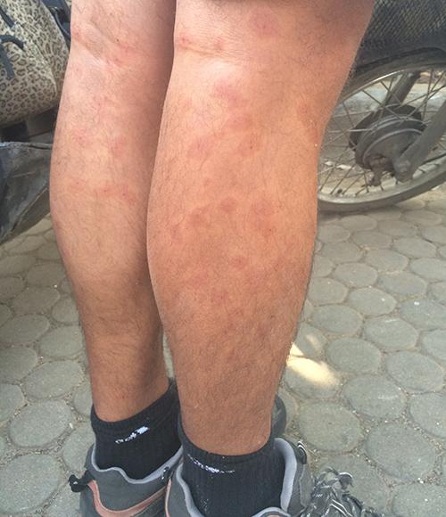 Unas piernas llenas de picaduras de algún insecto.